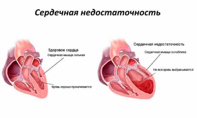 Прием препарата запрещен при недостаточности сердечной функции в хронической форме