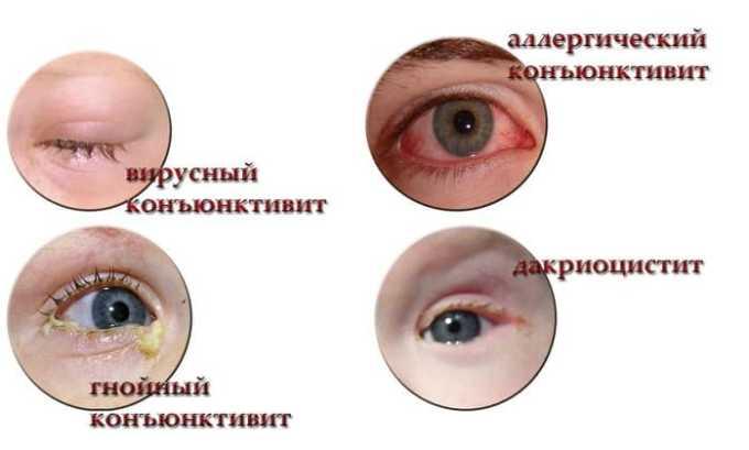 С помощью препарата эффективно лечат конъюнктивиты разной формы