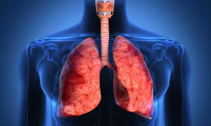 Амоксиклав назначается при инфекциях нижних дыхательных путей