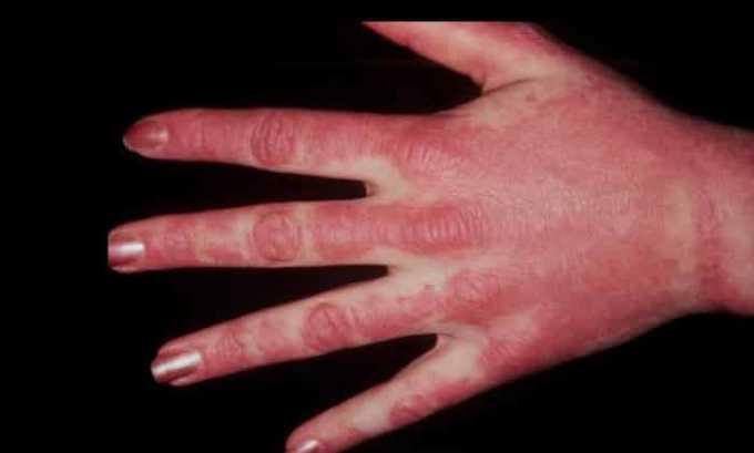 Препарат назначают при системном дерматомиозите