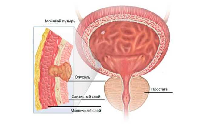 Лечение средством будет обоснованным при выявлении у человека рака мочевого пузыря