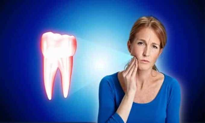 Ибупрофен назначают при зубной боли