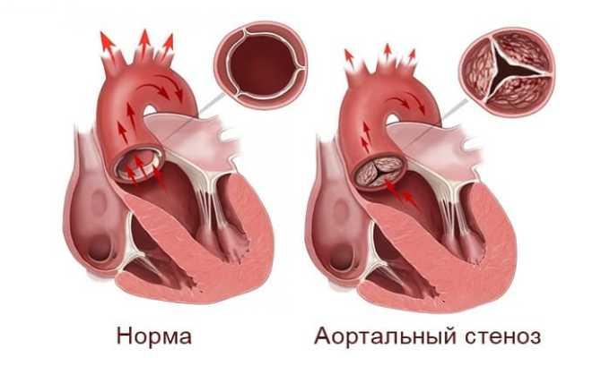 Аортальный стеноз - показание, при котором Берлиприл назначают с осторожностью