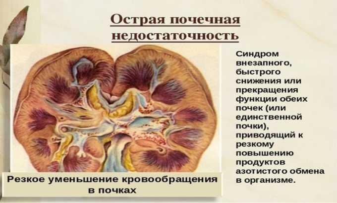 Препарат не применяется при почечной недостаточности