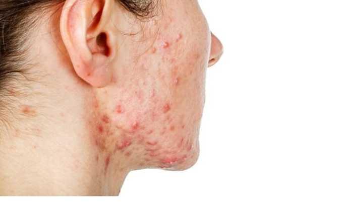Цефепим может вызвать кожные высыпания, сопровождающиеся зудом