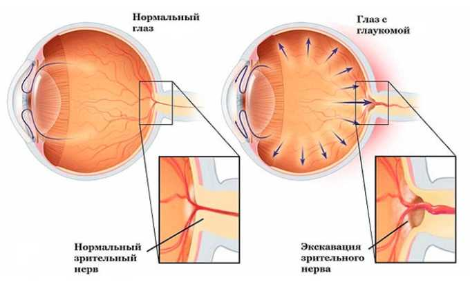 Прием лекарства противопоказан при глаукоме