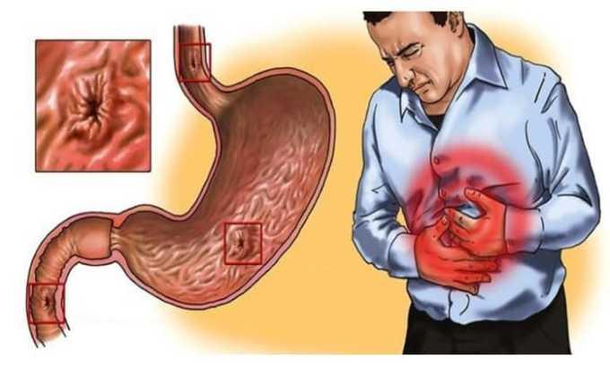 Лекарственное средство предназначено для лечения заболевания ЖКТ воспалительного характера