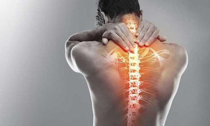 Применение суппозиториев Диклофенак позволяет купировать болевой синдром при остеохондрозе