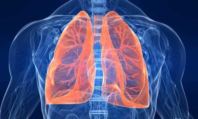 Применение Лораксона осуществляется при диагностировании у больного инфекционных болезней легких