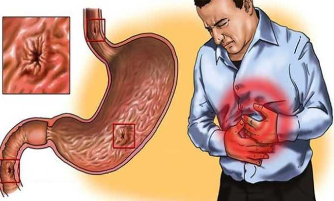 Запрещено использование медикамента при эрозии или язвы желудка