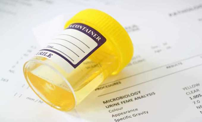 Общий анализ позволяет выявить концентрацию эритроцитов, белка и лейкоцитов в моче, обнаружить цилиндры и т. д