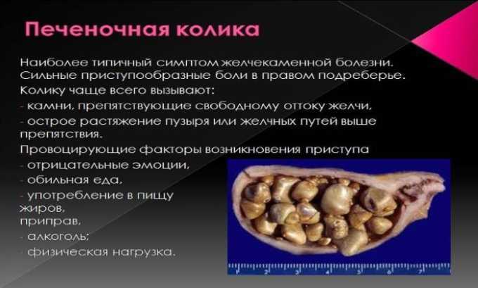Препарат применяется при печеночной колике