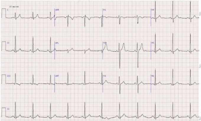 Если имеются подозрения на наличие заболеваний сердца при лечении отправляют на ЭКГ