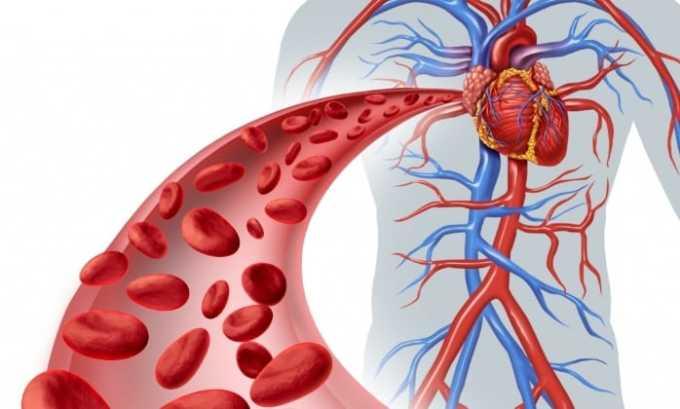 Призаболеваниях сердечно-сосудистой системы нельзя назначать Нурофен