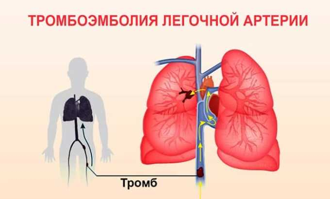 В числе наиболее часто встречающихся нежелательных эффектов выделяют тромбоэмболию