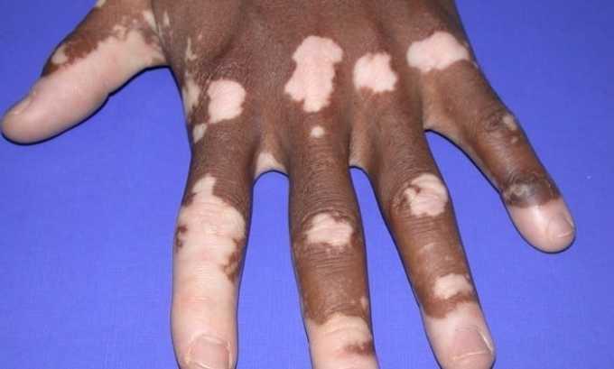 Для лечения витилиго используют тирозин