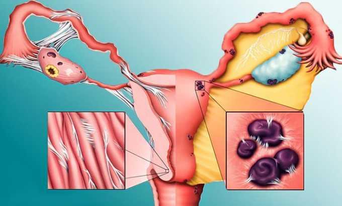 Вобэнзим используют в гинекологии при эндометриозе