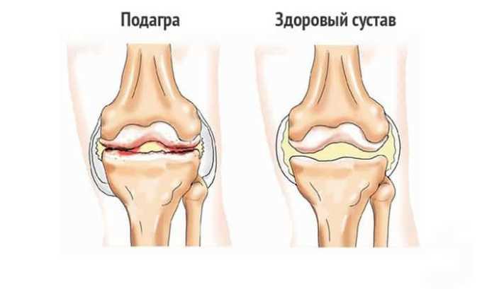 Препарат помагает при подагрических воспалительных процессах