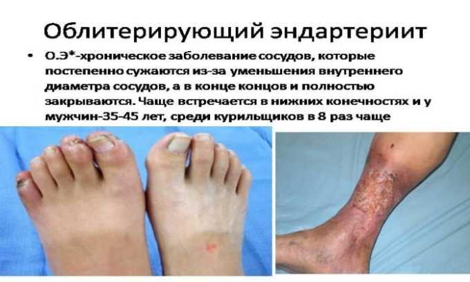 Препарат следует принимать с осторожностью при эндартериите