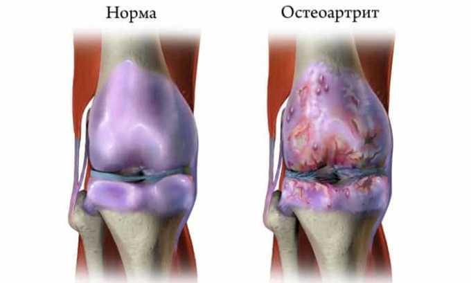 При остеоартрите лекарственную смесь вводят внутрь пораженных суставов