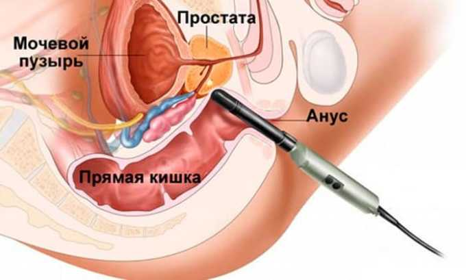 Трансректальное УЗИ - визуализация органа осуществляется через прямую кишку