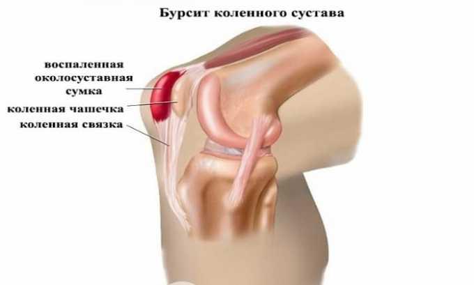 Противовоспалительное средство эффективно при воспалении суставной сумки