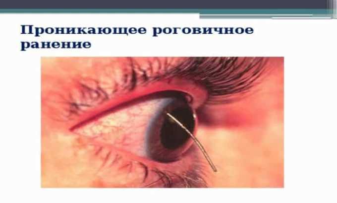 Препарат применяют при механических повреждениях глаз