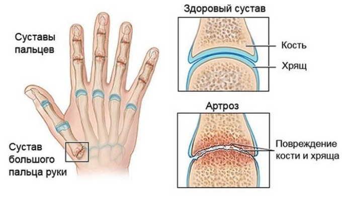 Препарат используется при артрозе