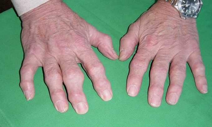 Нимесулид назначают при разных суставных болях