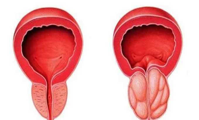 Ципрофлоксацин также назначается при диагностировании бактериального простатита