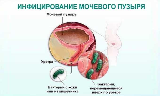 Причиной дриблинга у женщин является молочница и прочие инфекционные болезни мочеполовой системы