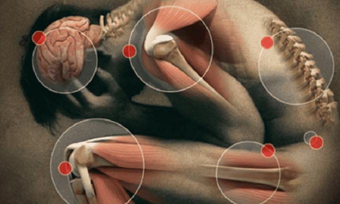 Лекарственное средство на основе парацетамола используется при дискомфорте в мышцах