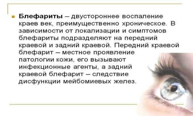Препарат используется для лечения воспаления век