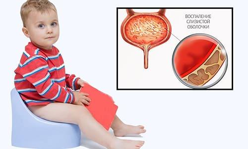 Цистит наиболее часто диагностируется у малышей в возрасте от 2 до 7 лет, связано это с незрелостью иммунной системы, неспособной в полной мере защищать организм от инфекций