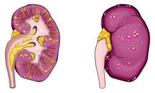 При отсутствии лечения или неверно подобранной терапии на фоне цистита и уретрита может возникнуть осложнение, например, пиелонефрит