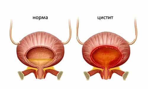 Острое или хроническое воспаление стенок мочевого пузыря и мочевыводящих путей, называемое циститом, - распространенное заболевание среди женщин
