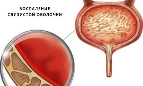 Воспалительный процесс, поражающий слизистую мочевого пузыря, причиняет дискомфорт и боль, требует своевременного лечения