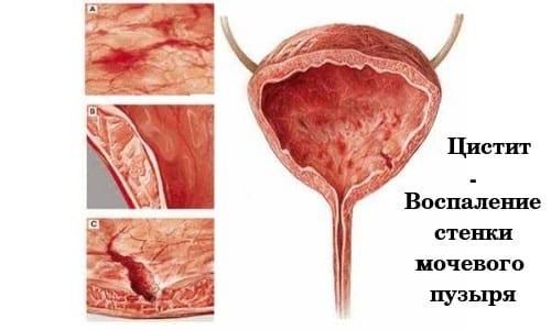 Острое воспаление мочевого пузыря нередко наблюдается у представительниц слабого пола, что обусловлено анатомическим строением уретры