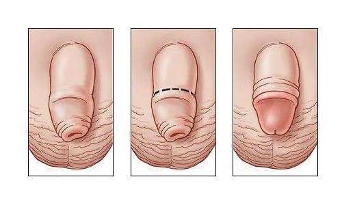 У подростков уролог помогает вылечить фимоз - патологию, при которой отверстие в крайней плоти сужено