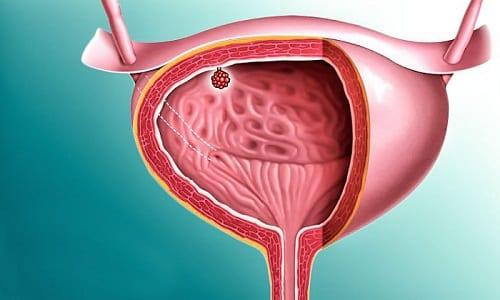 Образовавшиеся на внутренних стенках пузыря папилломы, или опухоли на ножках, заявляют о себе обильными кровотечениями при дезуринации