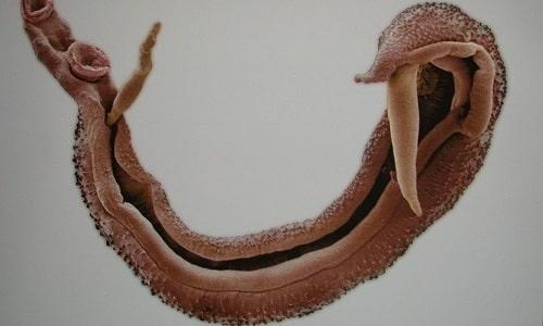 Паразитарный цистит возникает при попадании в мочеиспускательный канал шистосоматоз
