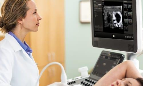 Основной инструментальный метод диагностики цистита - ультразвуковое исследование