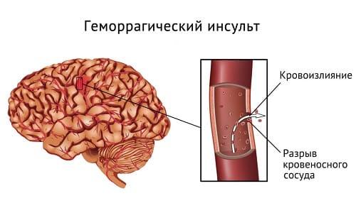 Препарат не назначается при геморрагическом инсульте