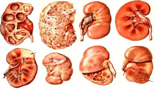 Спазмолитический МС противопоказан при выраженных почечных патологиях