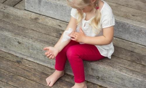 Противопоказания от геля Вольтарен Эмульгель, дети младше 12 лет