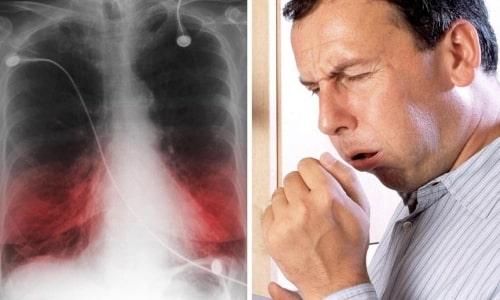 Антибактериальная терапия при пневмонии длится 10-14 дней