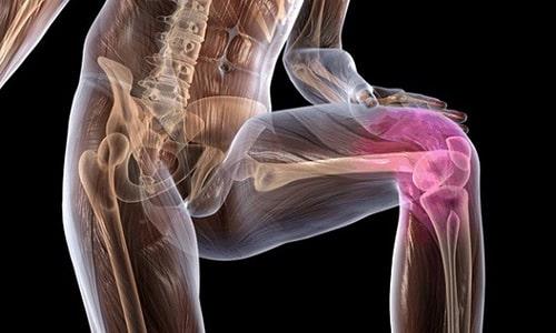 Ибупрофен 200 назначают при остеоартрозе