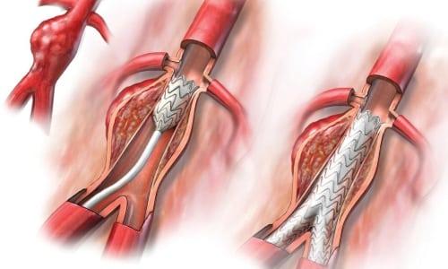 Лизиноприл способствует расширению артерий