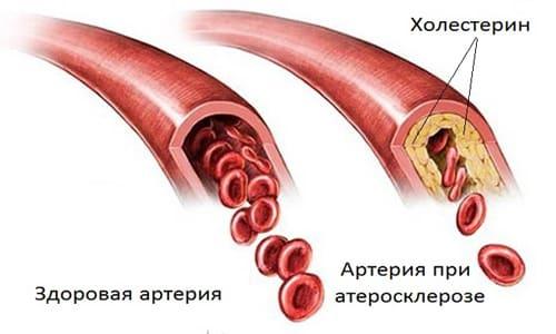 Осторожность во время терапии нужно проявлять при атеросклерозе