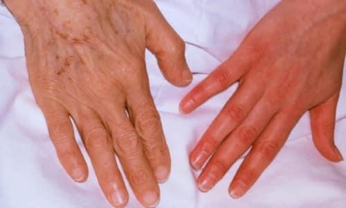 Относительные показания - анемия